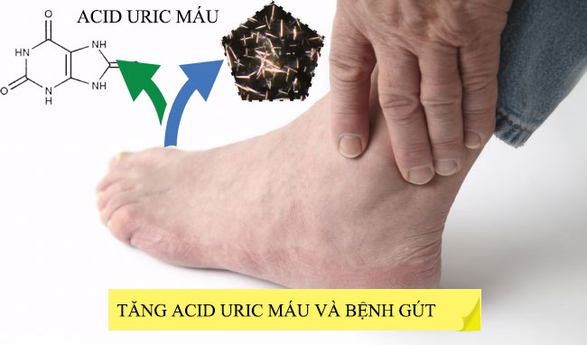 Nồng độ acid uric trong máu cao có thể là dấu hiệu của bệnh gout