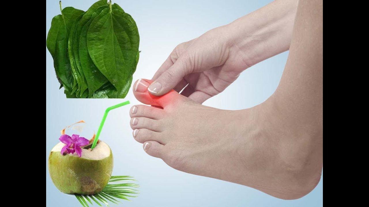 Điều trị bệnh gút từ lá trầu và nước dừa