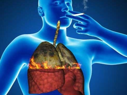 Hút thuốc lá tiềm ẩn nguy cơ gây ung thư phổi