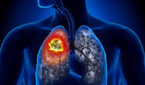 Ung thư phổi đang gia tăng ở Việt Nam
