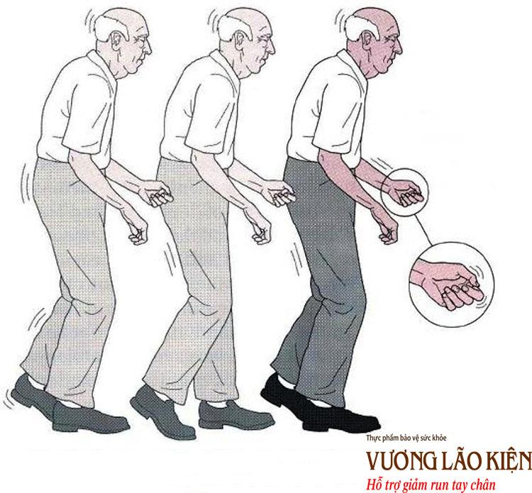 Hội chứng run tay chân ở người cao tuổi